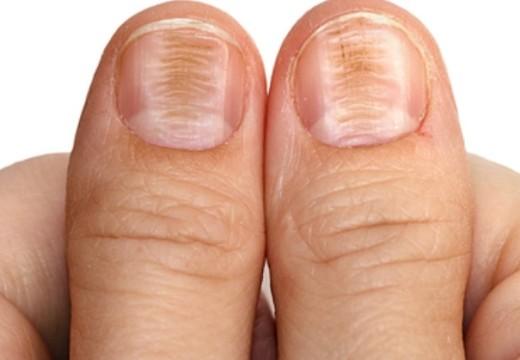 Health warnings in fingernails