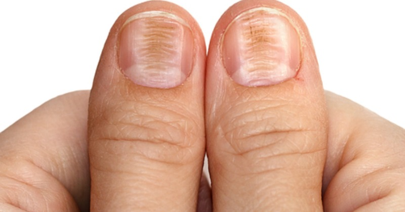 fingernails_health